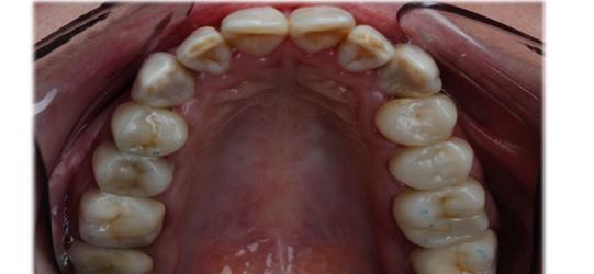 Obturación , antes odontologia