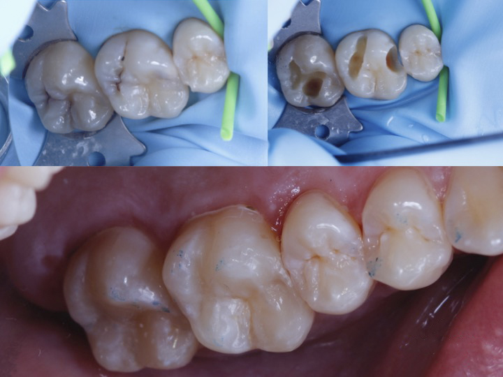 Reconstrucción en molares superiores odontología