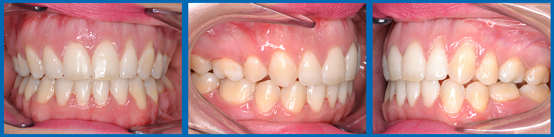 clase II - mordida cubierta, ortodoncia