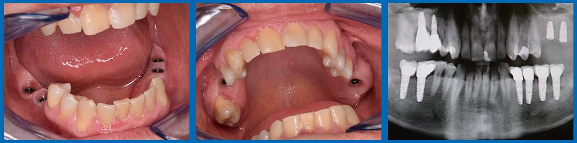 Implantes -Rehabilitación mediante corona 1