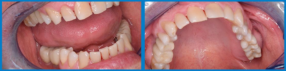 Implantes -Rehabilitación mediante corona 2