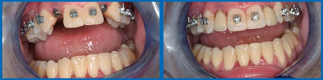 implantes caso 3
