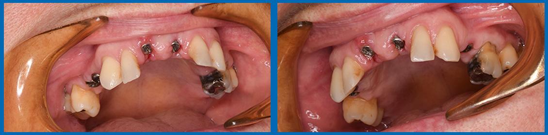 Implantes caso 4