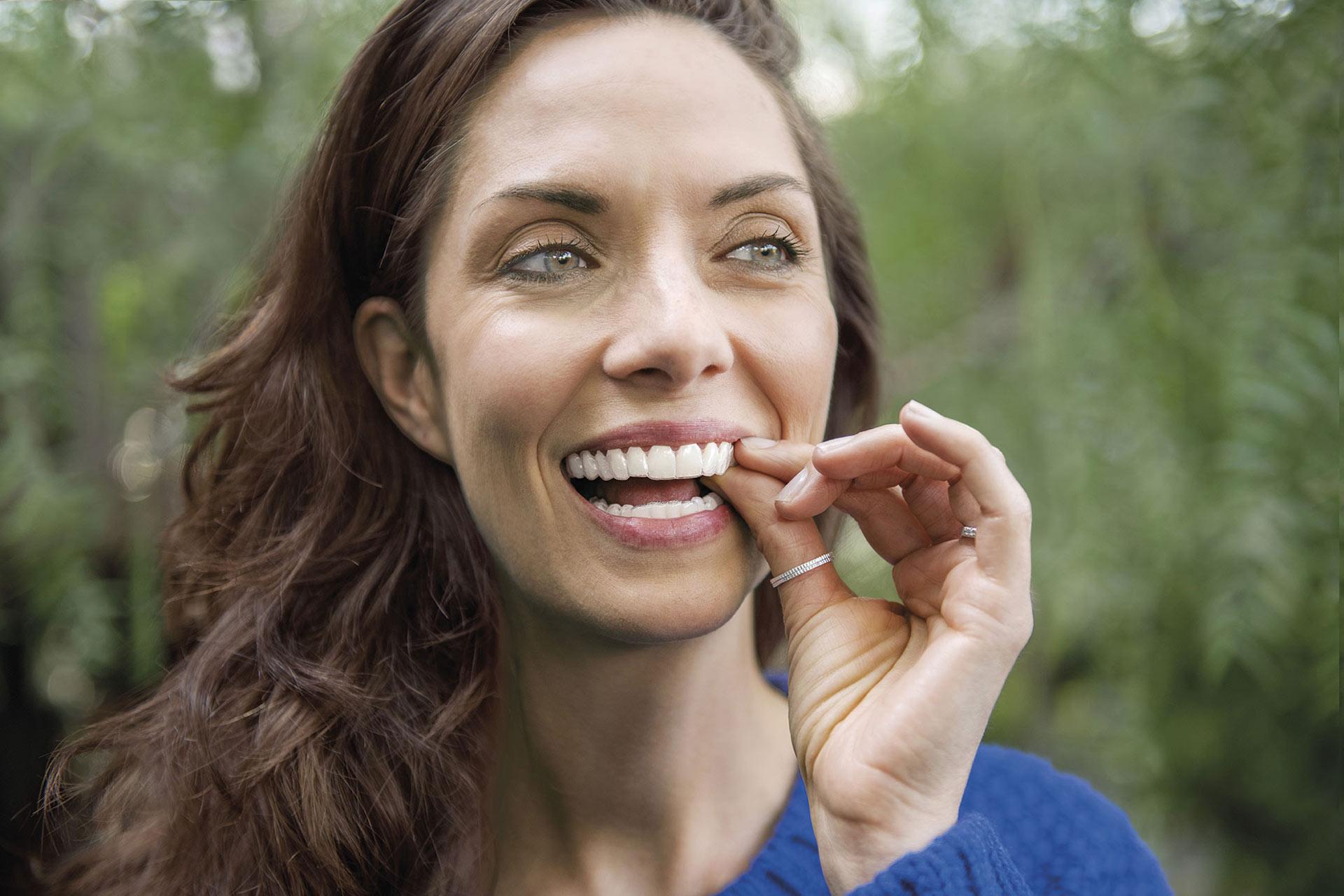 Ortodoncia invisible - Alineador en la boca