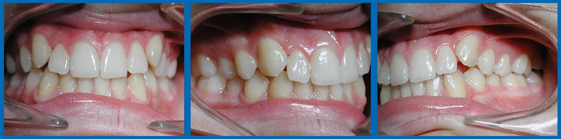 Apiñamiento dental leve
