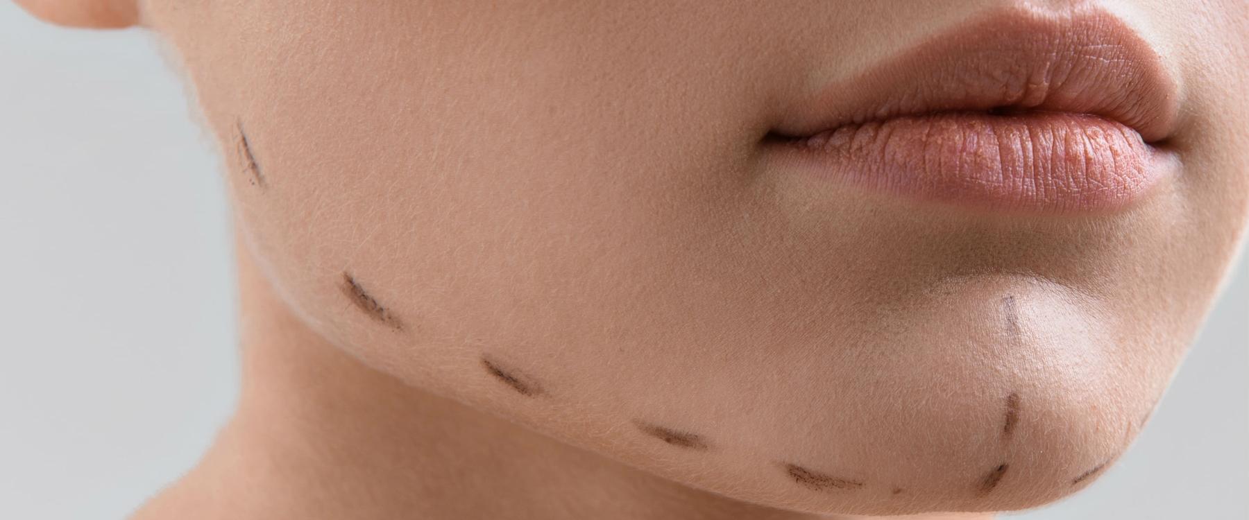 cirugía maxilo facial