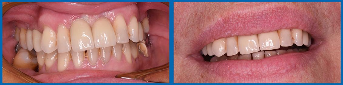 Implantes caso 4b