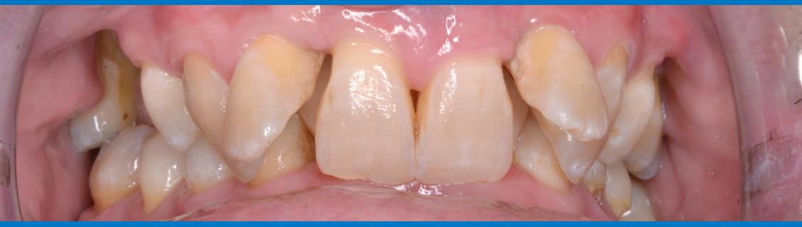 Sobremordida profunda, ortodoncia